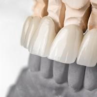 Corso FAD Denstisa-25-ecm-online-odontoiatra-corso riabilitazione