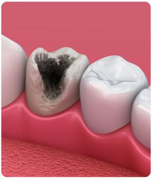 FAD Odontoiatri 2019 25 crediti ecm dentisti