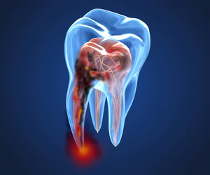 FAD-ECM-Endodonzia-Odontoiatri-250