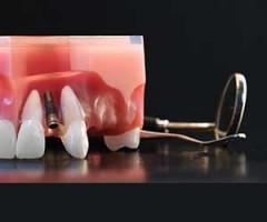 Dentista-FAD-ECM-odontoiatri_implantologia_dc2_2020_ac1