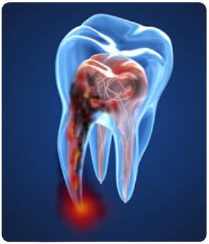 Corso ECM Dentista online 2020